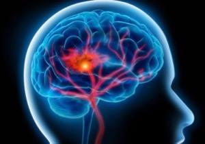 N° 050 Accident vasculaire cérébral  : savoir  sauver un ami.